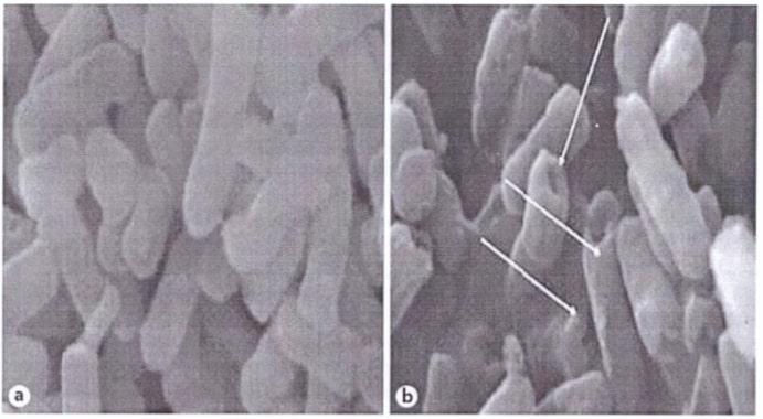 Поры обеспечивают доступ мурамидазы к пептидогликануклеточной стенки грамотрицательных бактерий.