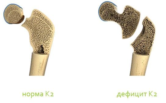 Значение Витамина К2 (менахинон)
